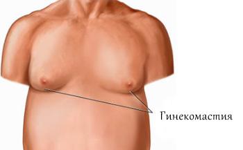 Гинекомастия у мужчин, основные сведенья и способы лечения