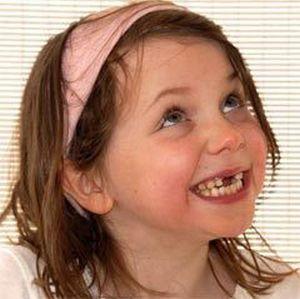 beregite-molochnye-zubki_1
