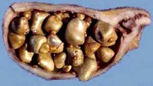 Камни в Желчном Пузыре | Лечение + Удаление + Дробление