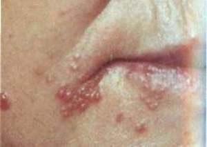 Лечение и Диагностика Половых Инфекций