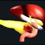 рак поджелудочной железы 4 стадии