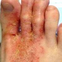 Как вылечить экзему на ногах?