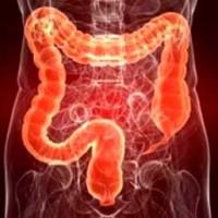 Неспецифический язвенный колит– этиология, классификация, симптоматика