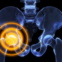 osteoartroz-tazobedrennogo-sustava_1
