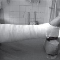 Посттравматический артроз голеностопного суставаа